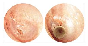 Resultado de imagem para timpanotomia